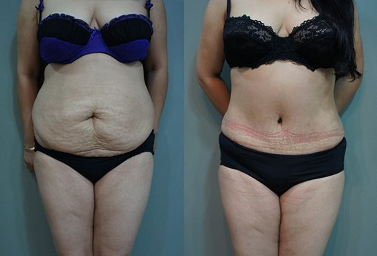 before-after-lipo